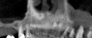 eosinophgranul1i