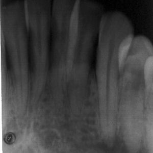 hemangioma3c (1)