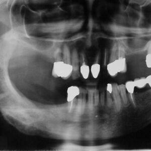 osteomy1a