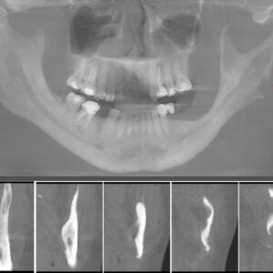 osteomyelitis4-1024x831