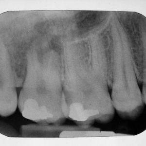 osteosarcomamix1b