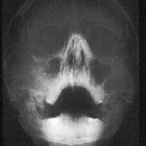 osteosarcomamix1c