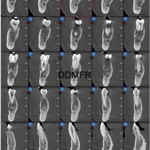 Osteomyellitis apical 3